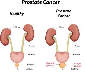 prostate_pic2